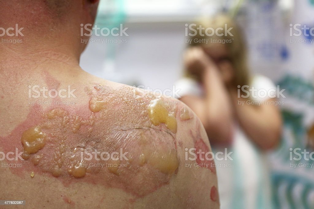 back with second degree burn #2 stock photo