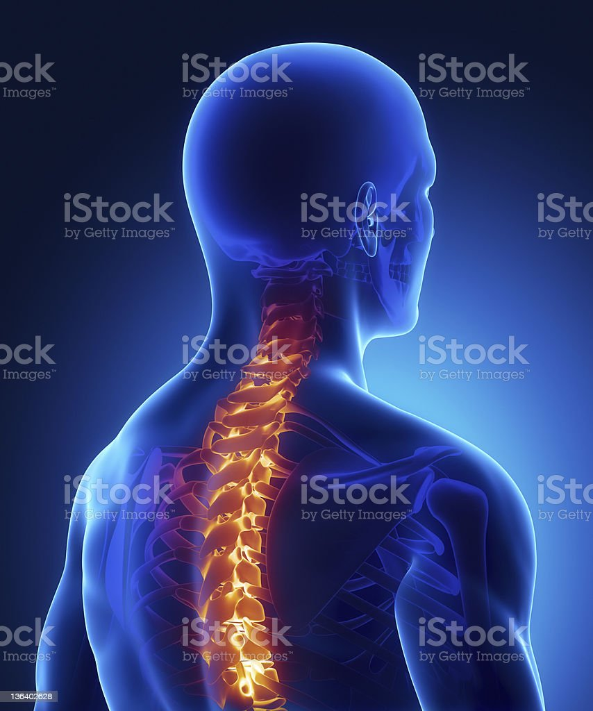 Backbone injury highlighted in x-ray royalty-free stock photo