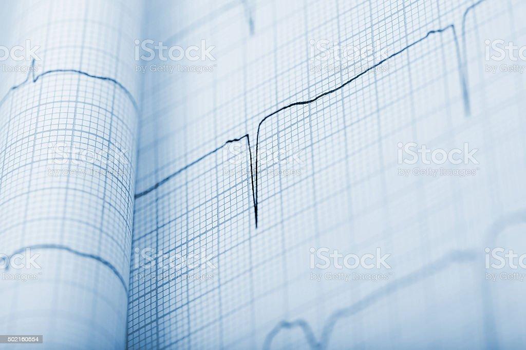 EKG background in monochrome stock photo