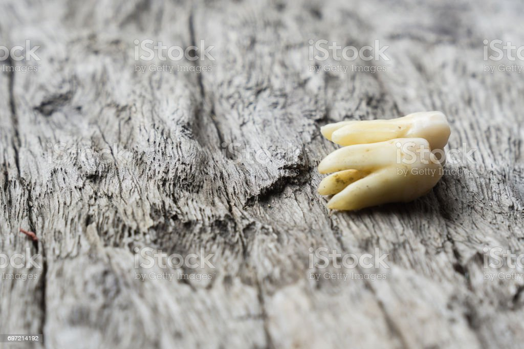 Background of extraction teeth on wood floor stock photo