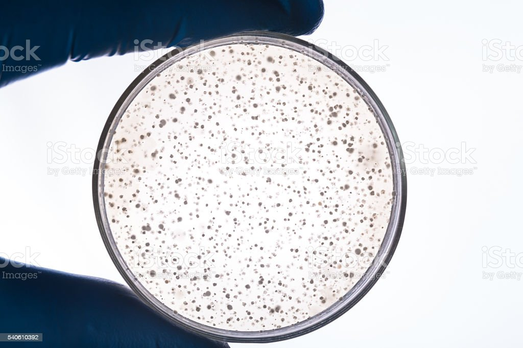 bacteria colony in petri dish hold by hand stock photo