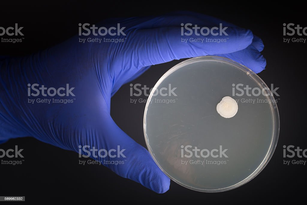 bacteria colony in petri dish with black background stock photo