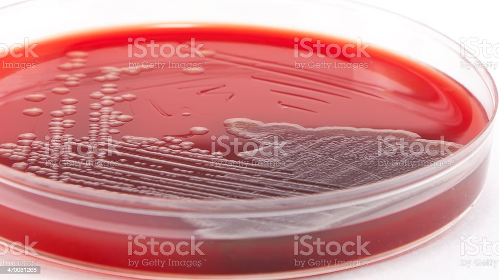 Bacterial colonies on petri dish stock photo
