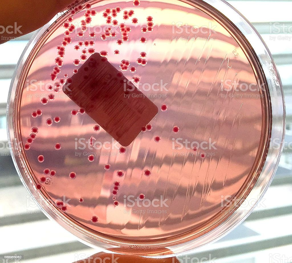 Bacterial culture of enterobacteria stock photo