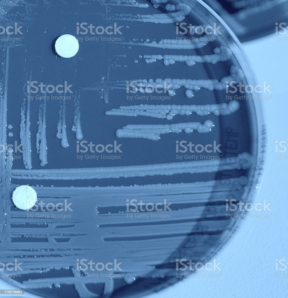 Bacterial culture plate royalty-free stock photo