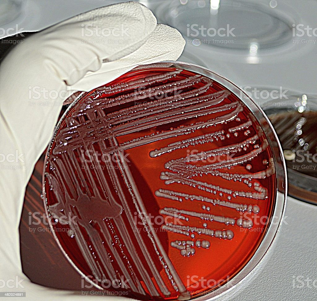 Bacterial cuture royalty-free stock photo