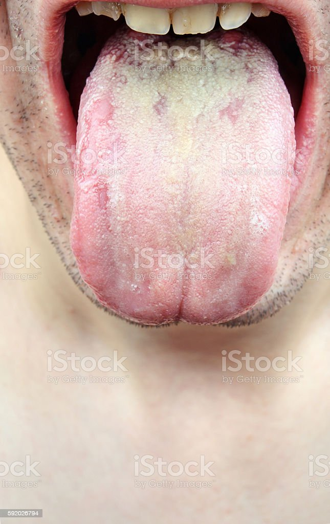 Bacterial infection disease tongue stock photo