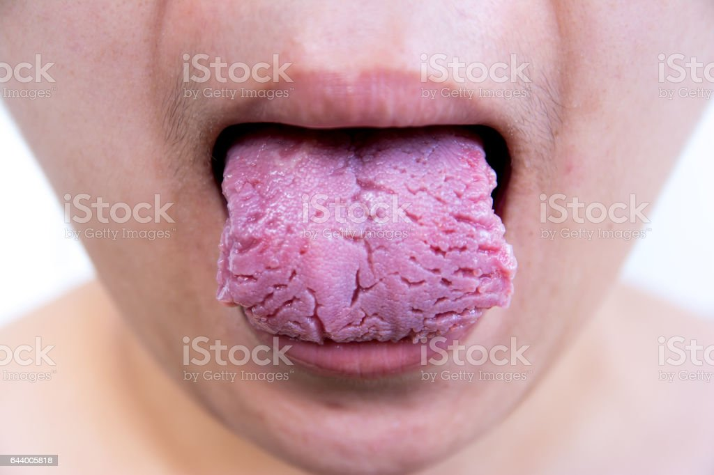 Bacterial infection disease tongue,The tongue is thrush.Tongue wound.Fissured tongue stock photo