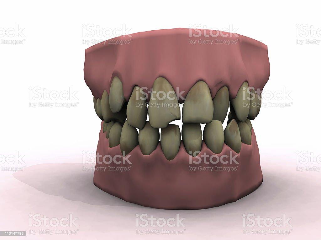 bad teeth royalty-free stock photo