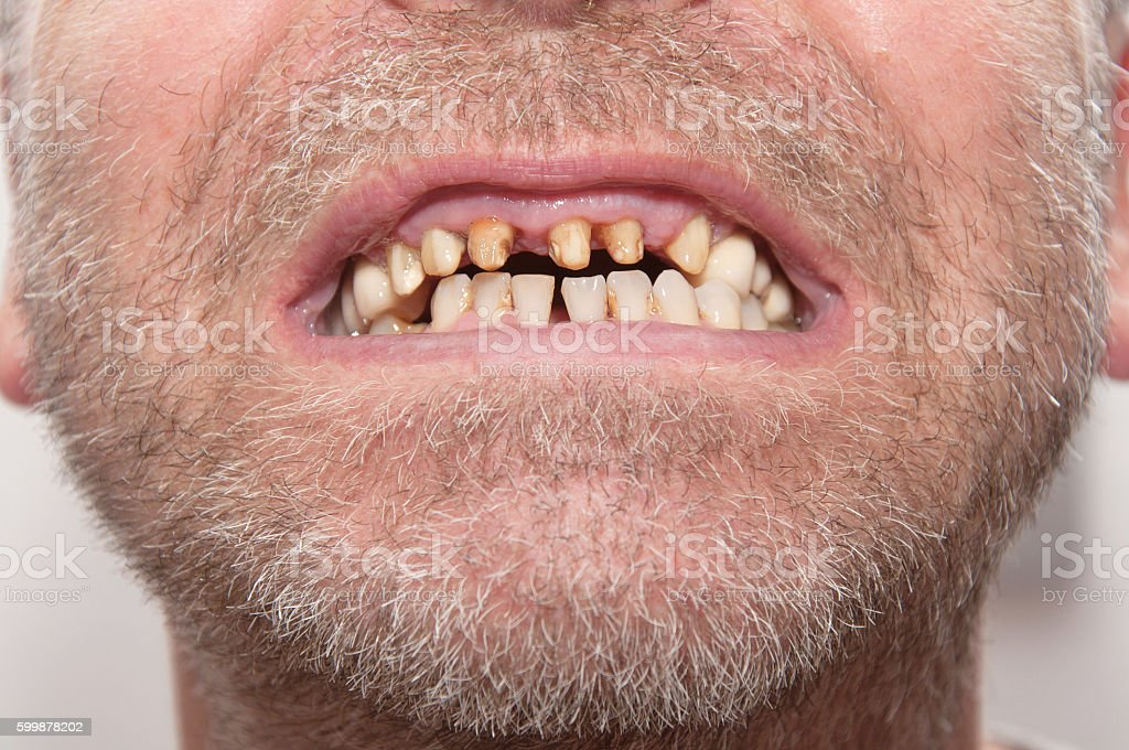 Bad teeth stock photo