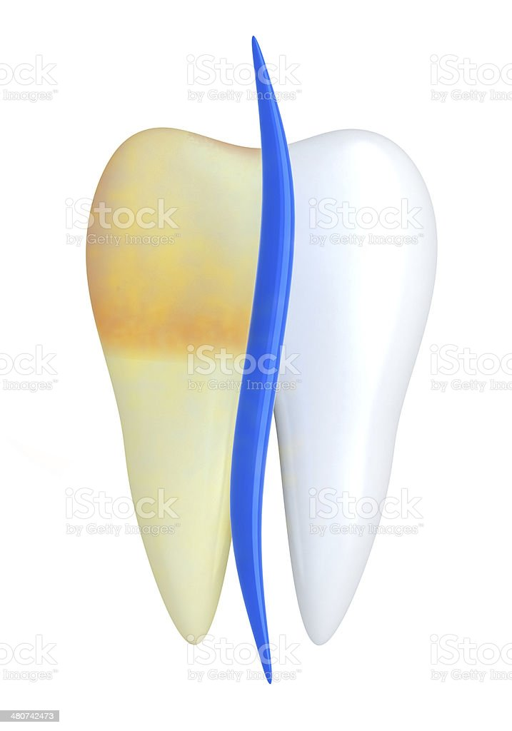 Bad tooth stock photo
