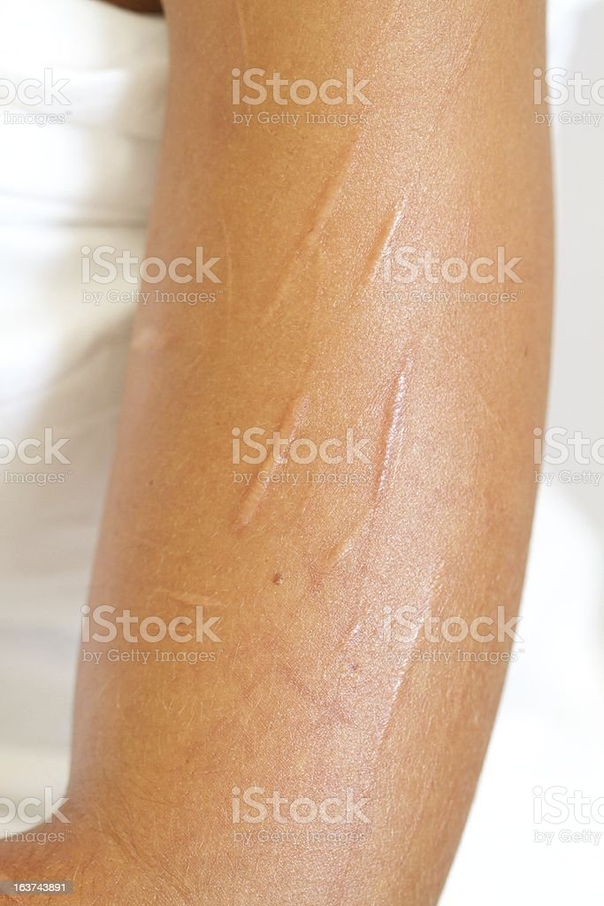 Badly Scarred Upper Arm from Self Mutilation by Cutting stock photo