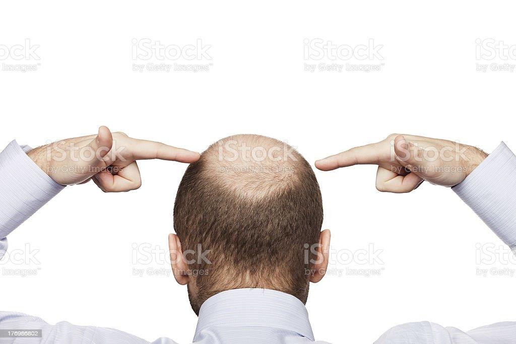 Bald man head stock photo