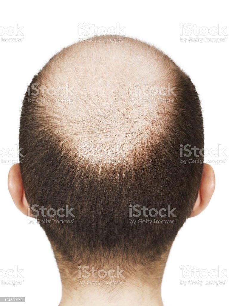 Bald men head royalty-free stock photo