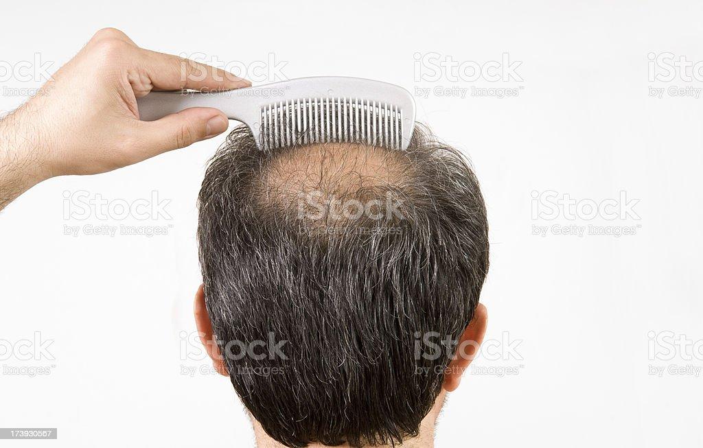 bald men is combing his hair stock photo