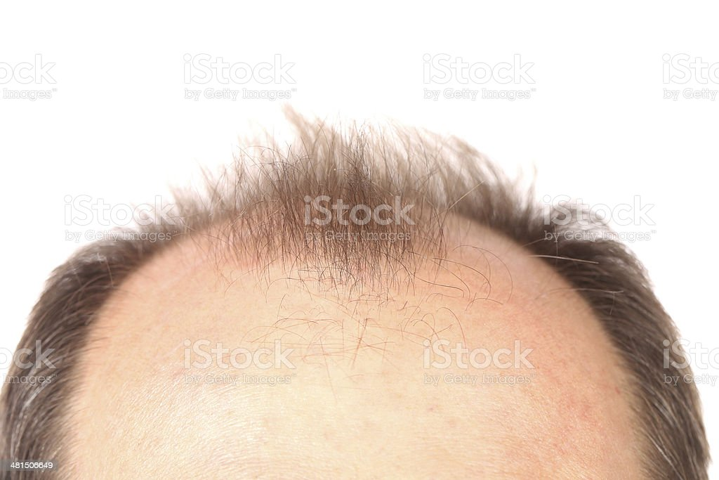 Bald men. stock photo