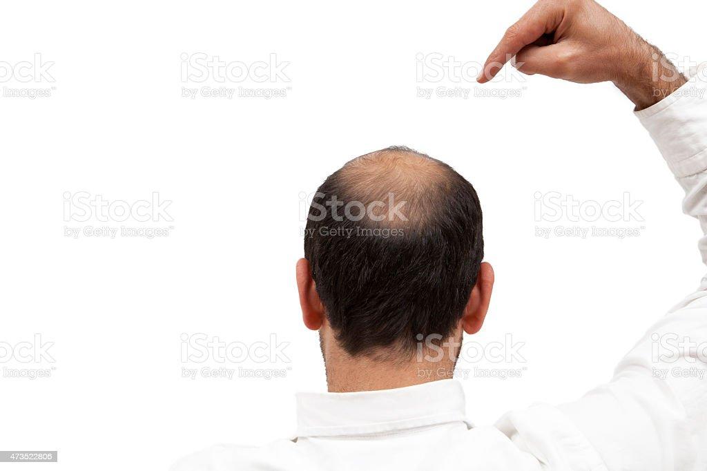 Bald stock photo