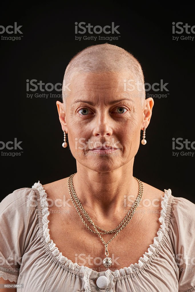 Bald woman in chemotheraphy fighting cancer stock photo