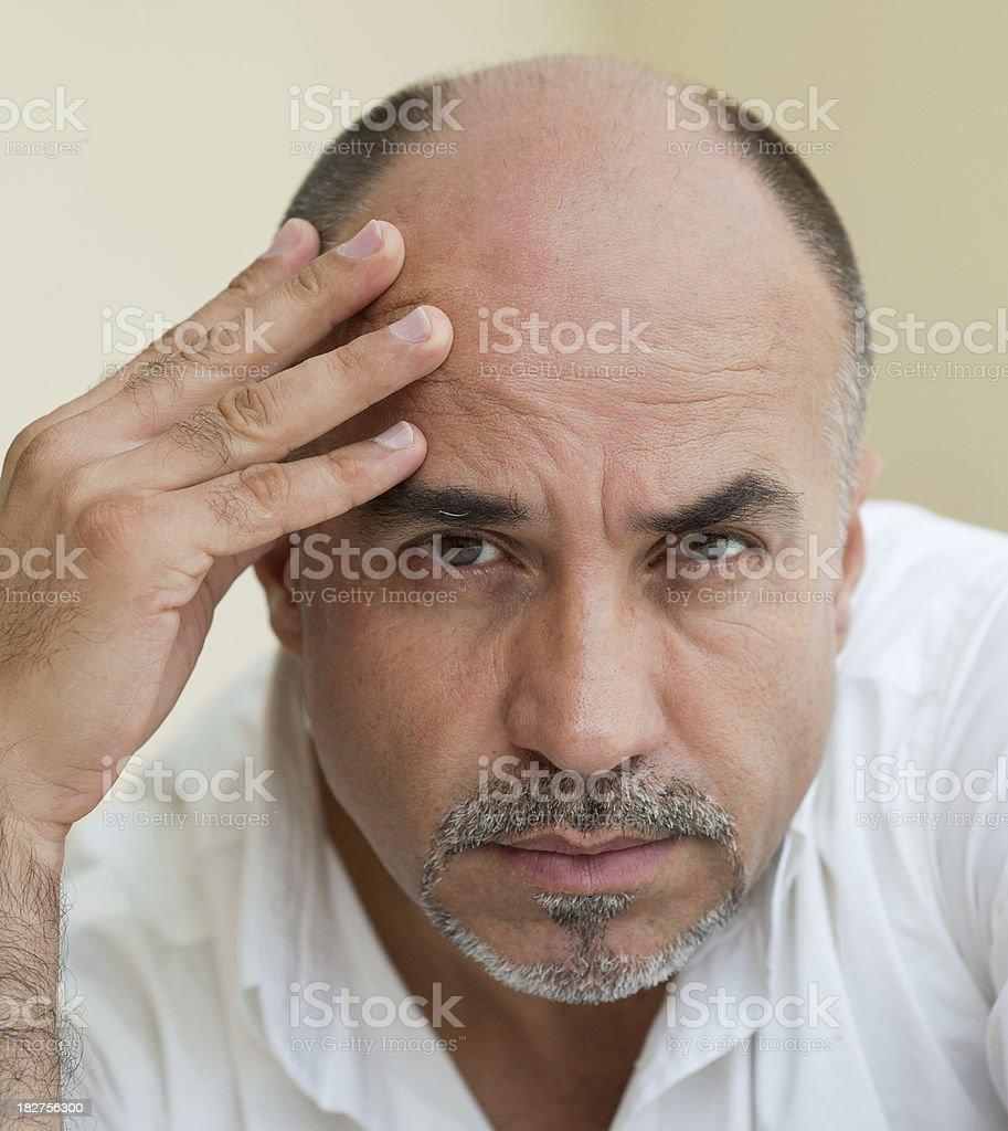 Balding and Depression stock photo