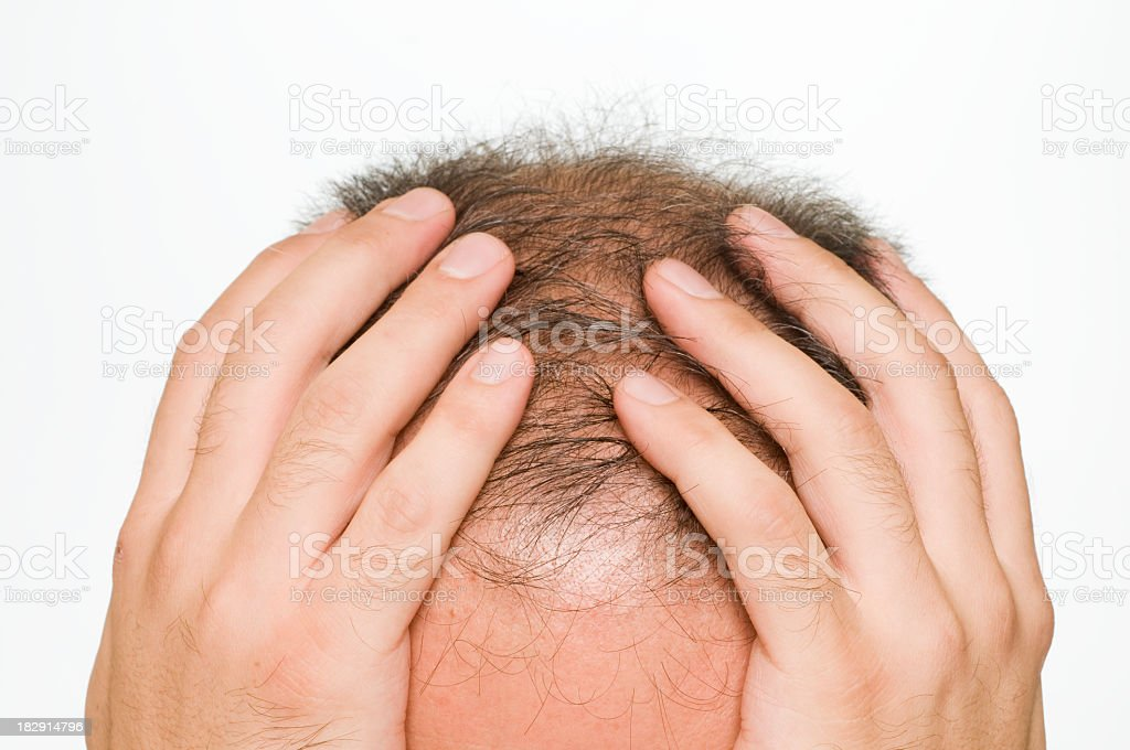 Balding man holding his head in his hands stock photo