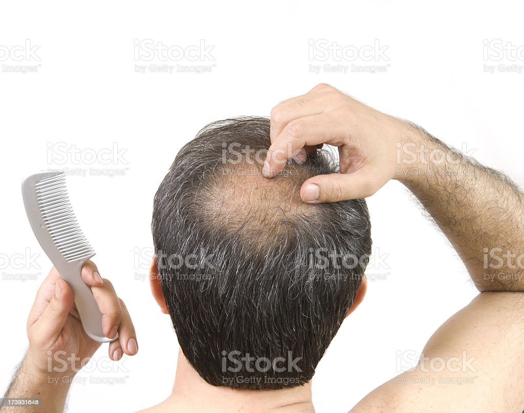balding royalty-free stock photo