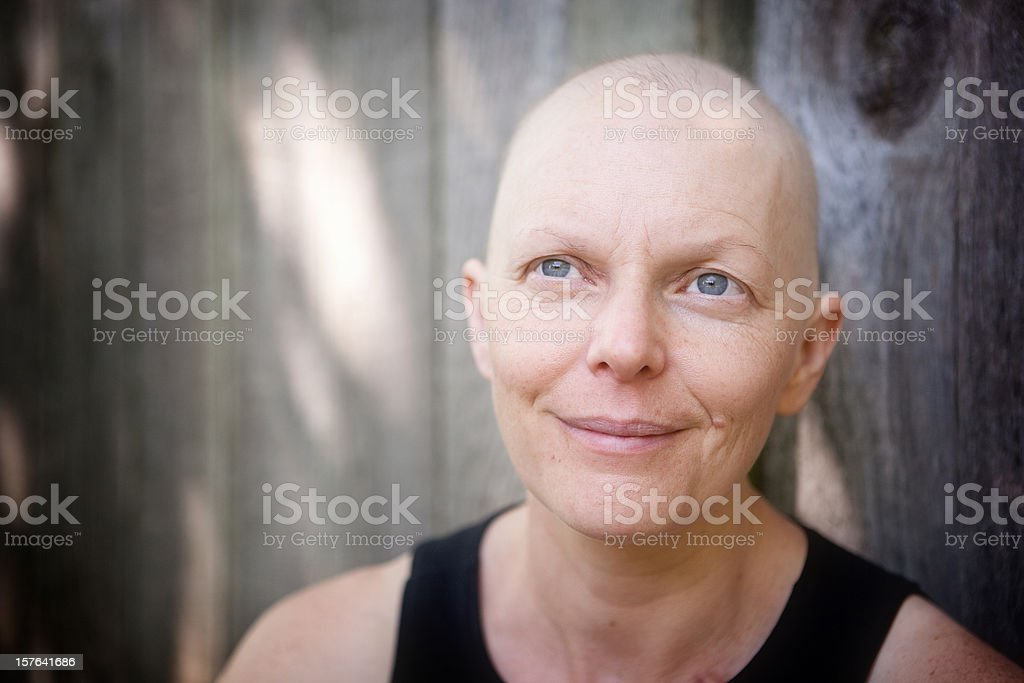Balding woman fighting breast cancer outdoors looking off camera. stock photo
