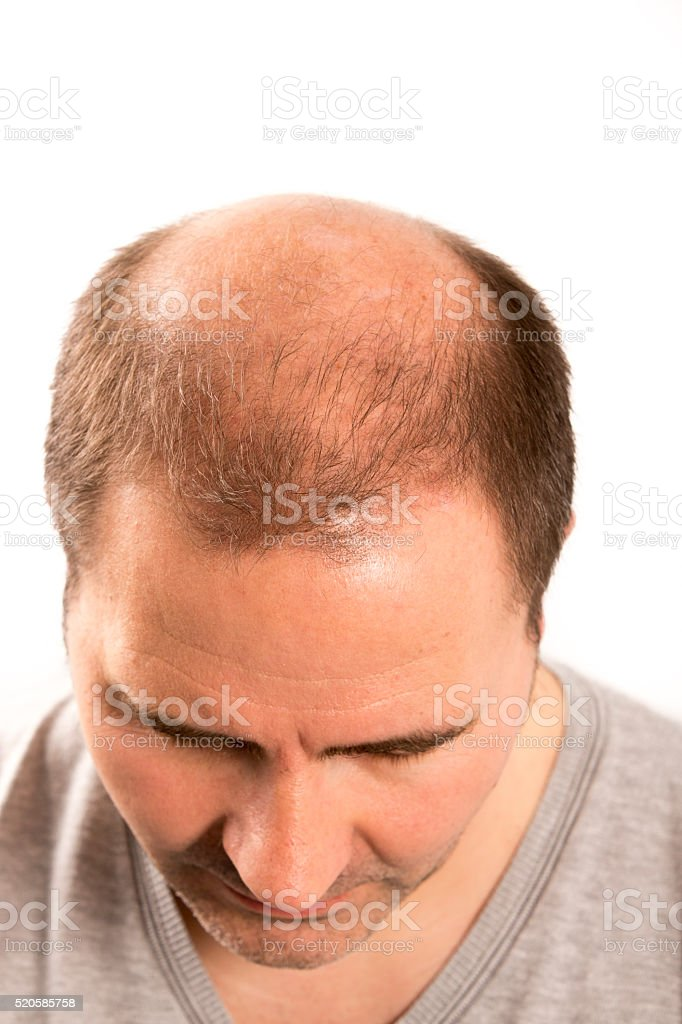 Baldness Alopecia man hair loss haircare stock photo