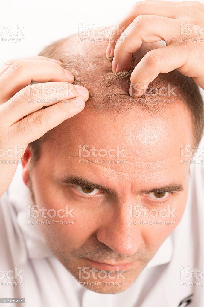 Baldness Alopecia man hair loss haircare stock photo