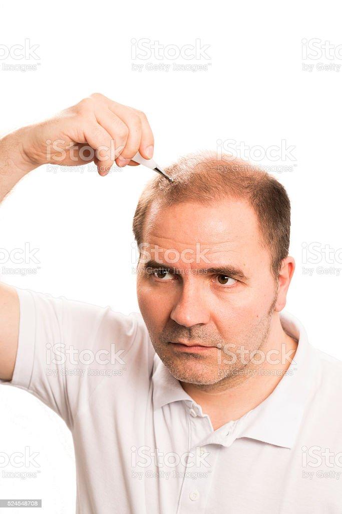 Baldness Alopecia man hair loss isolated stock photo