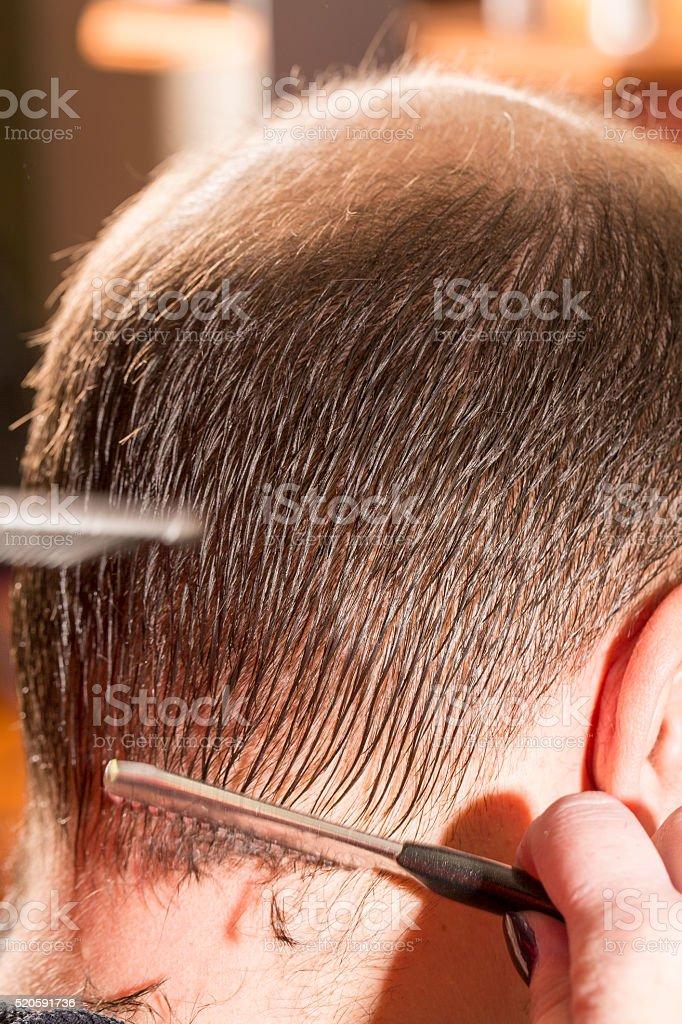 Baldness alopecia or hair loss haircare stock photo