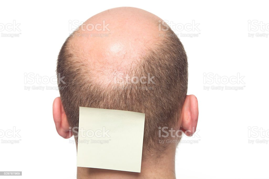 Baldness in men XXXL stock photo