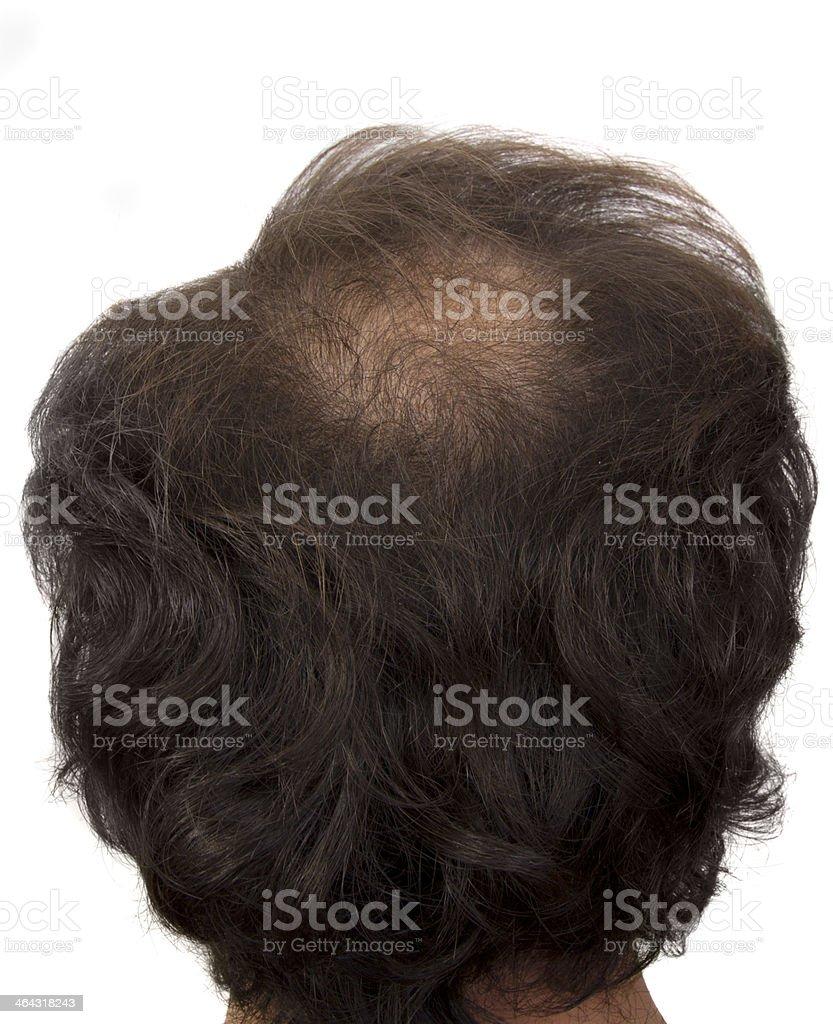 baldness stock photo