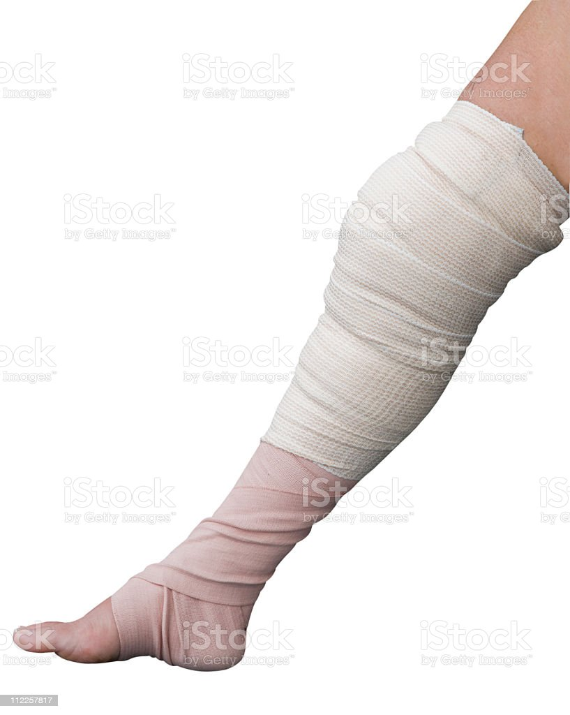 Bandaged Leg,Torn Meniscus surgery dressing stock photo