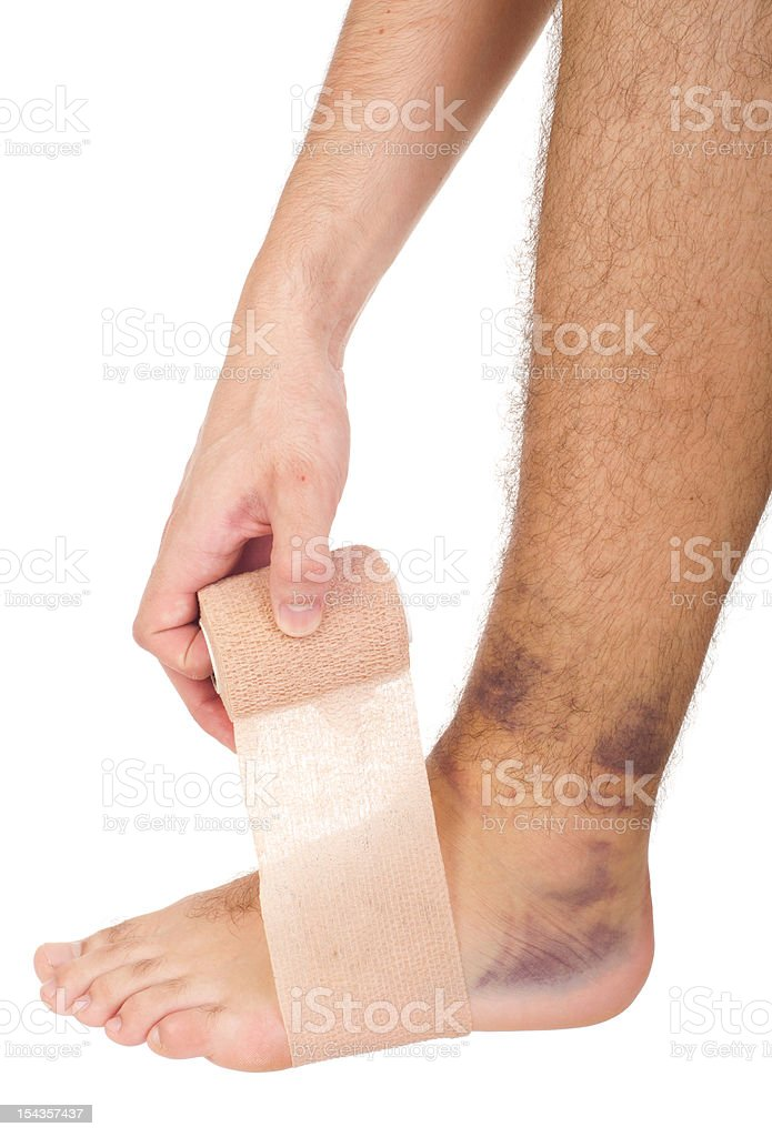 Bandaging a sprained ankle royalty-free stock photo