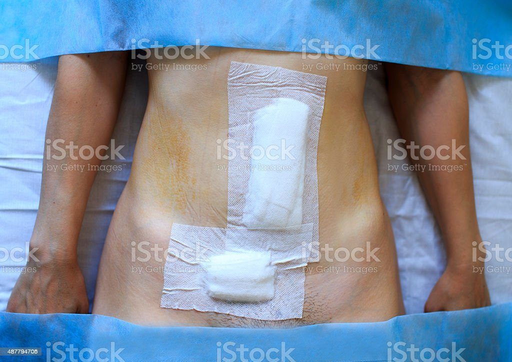 bandaging belly woman stock photo
