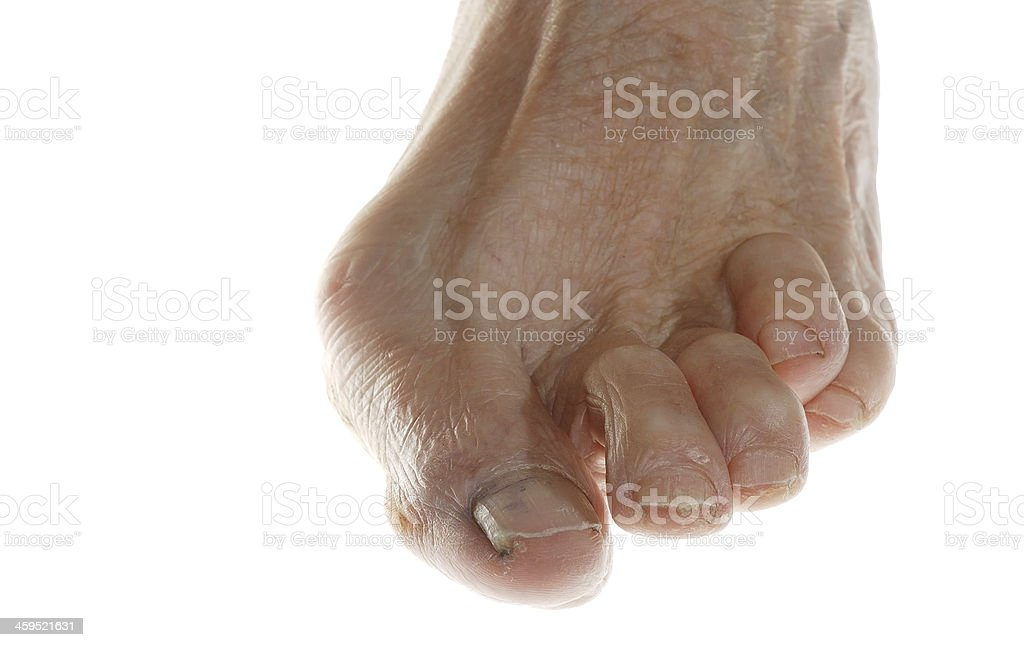Bare foot with fungus against white background stock photo