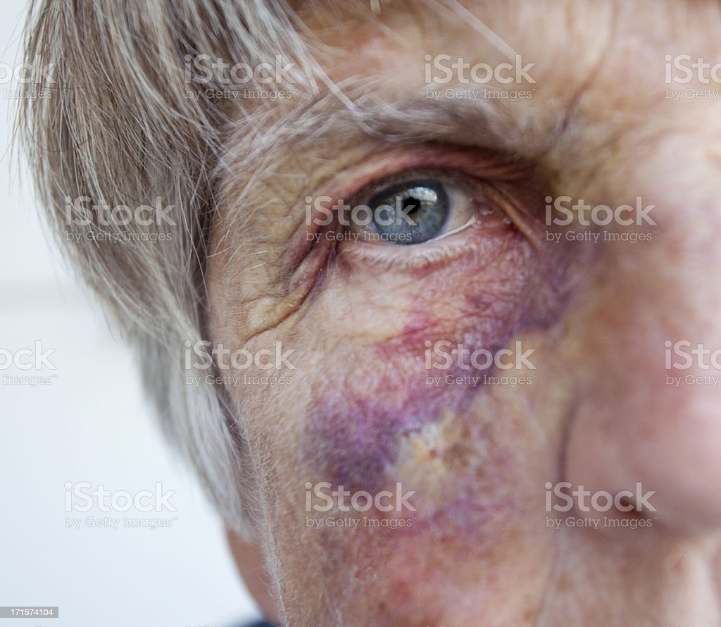 Battered senior woman. Close up of black eye. stock photo