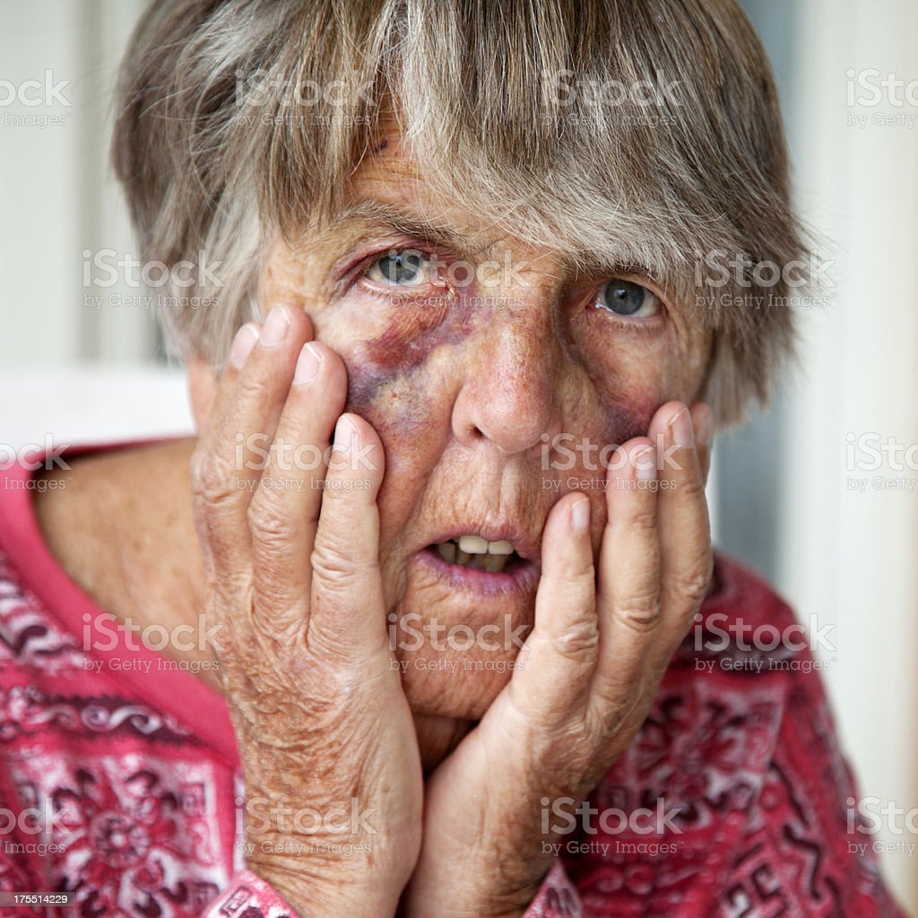 Battered senior woman with bruises stock photo