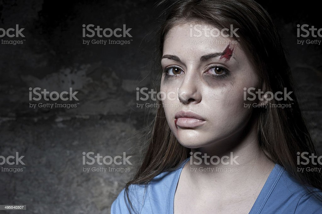 Beaten up woman. stock photo