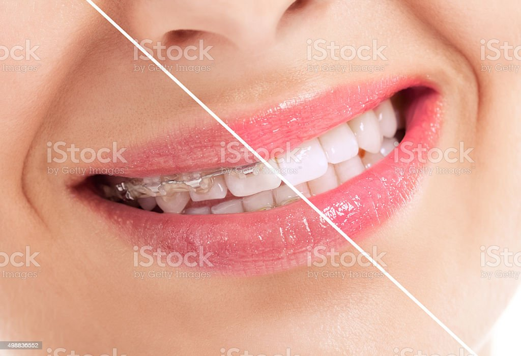 Beautiful heathy smile before and after braces stock photo