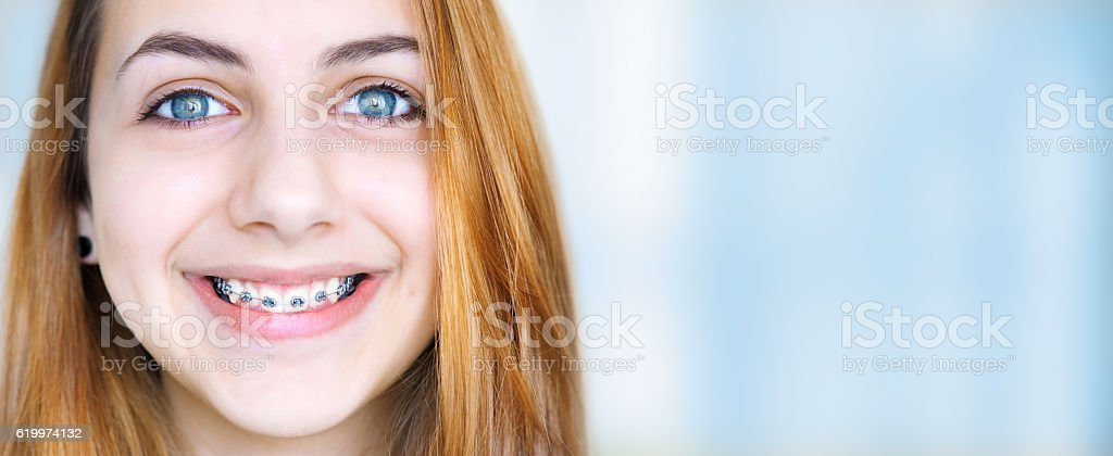 Beautiful smiling girl with retainer for teeth . stock photo