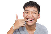 Beautiful smiling of handsome boy pointing to teeth brace dental.
