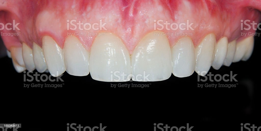 Beautiful teeth stock photo
