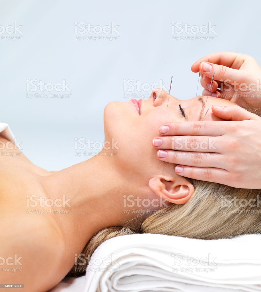 Beautiful young woman lying down receiving acupuncture therapy stock photo