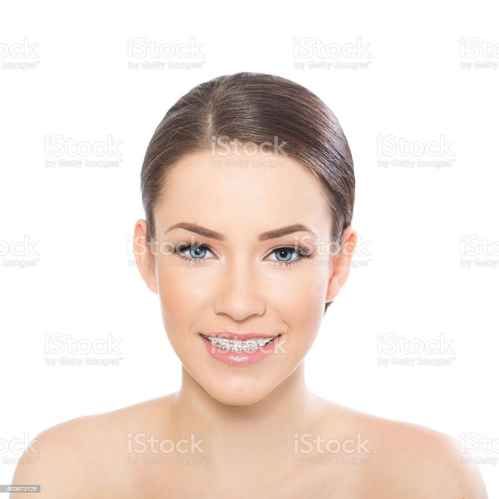 Beautiful young woman wearing braces stock photo