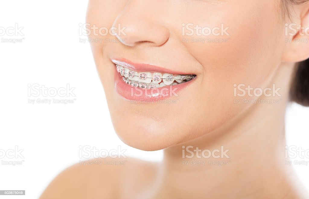 Beautiful young woman wearing braces stock photo