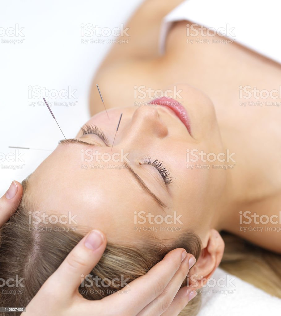 Beautiful young woman with eyes closed receiving acupuncture therapy stock photo