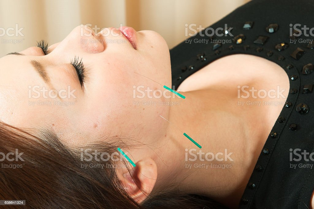 Beauty acupuncture to Japanese women stock photo