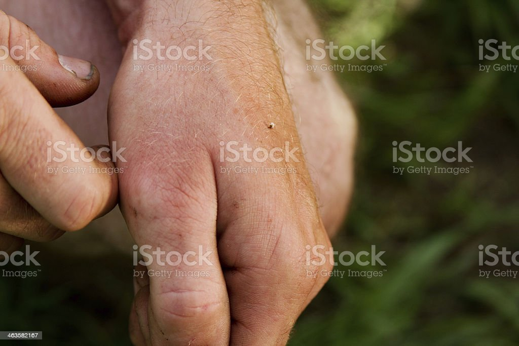 Bee sting on hand stock photo