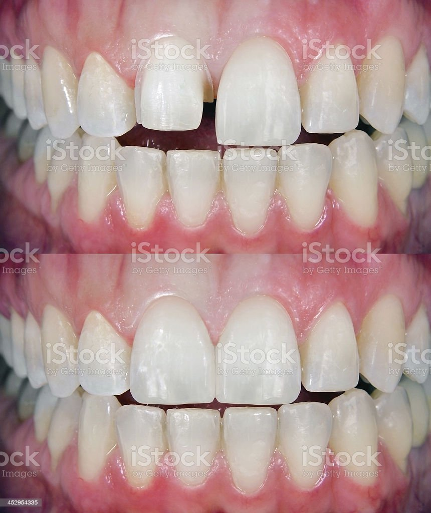 Before & After Dental Veneer stock photo